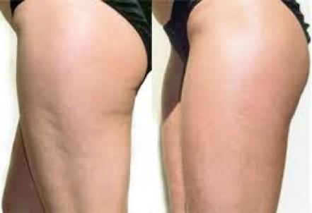 Cellulitebehandlung, Skincur Memmingen, Ergebnis
