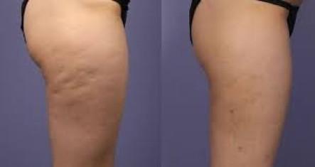 Cellulite, Memmingen, Oberschenkel