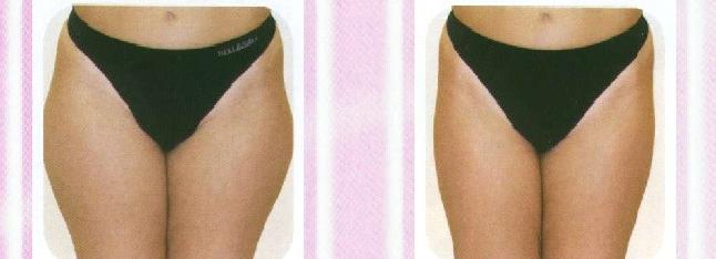 Ergebnis, Skincur, Behandlung
