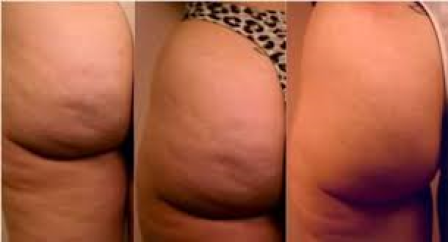 Memmingen, Skincur, Behandlung